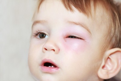 First Aid for Your Child: Eye Injury
